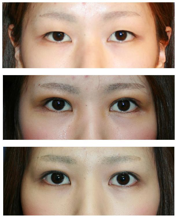 眼瞼下垂修正術 術後1か月   , つり目形成術 患者さんからのメール_d0092965_2325166.jpg