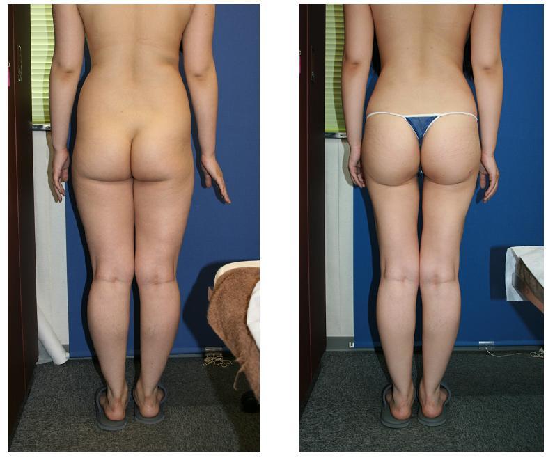 ウエスト脂肪吸引、 殿部脂肪吸引、 太もも全周脂肪吸引_d0092965_0465057.jpg