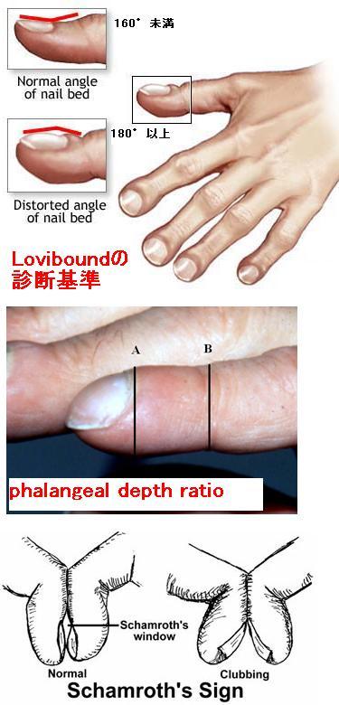 ばち指の定義_e0156318_1039048.jpg