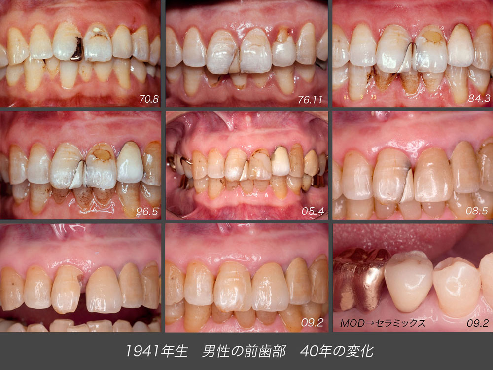 神奈川歯科技工ゼミナール 2._f0103459_9212851.jpg