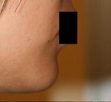 顎の骨セメントと顆粒状のセラミック除去_c0193771_1723615.jpg
