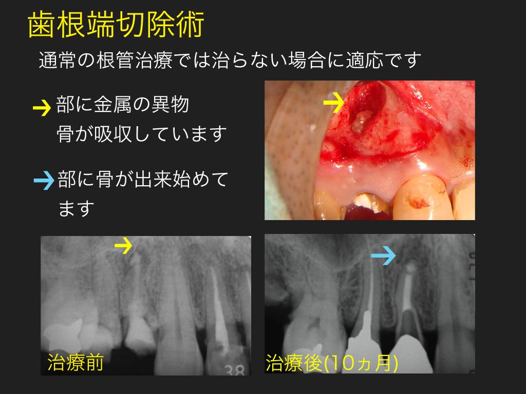 歯根端切除_a0140882_2332517.jpg