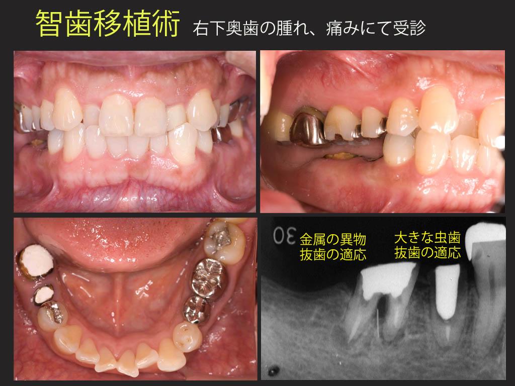 智歯移植_a0140882_204767.jpg