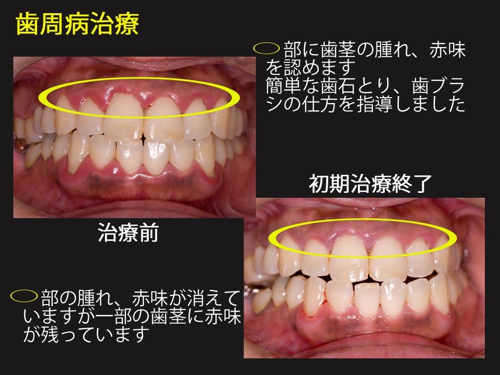 歯周病 初期治療_a0140882_2224582.jpg
