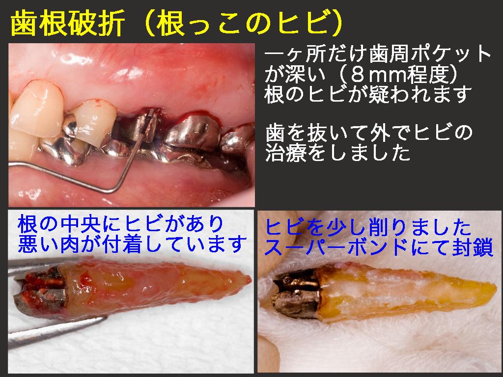 歯根破折(根っこのヒビ)_a0140882_22481394.jpg