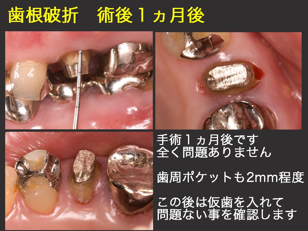 歯根破折(根っこのヒビ)_a0140882_22485616.jpg