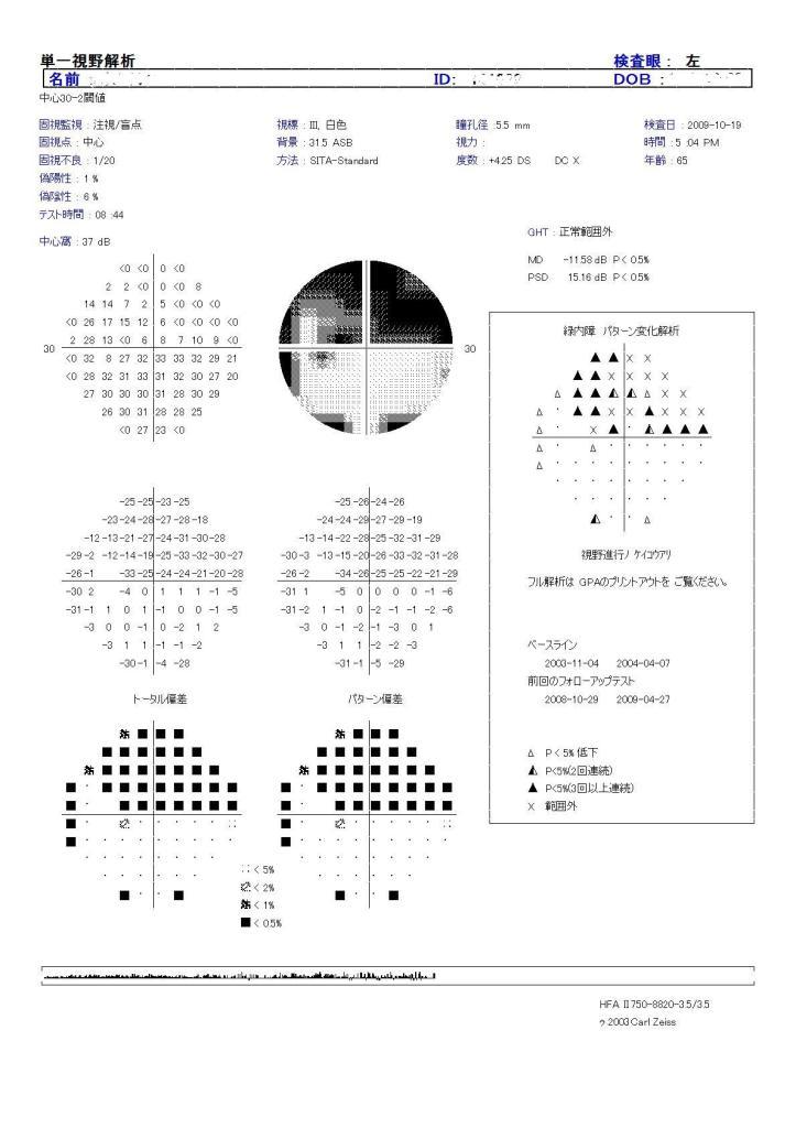 視野検査について その2 (421)_f0088231_225699.jpg