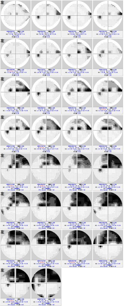 視野検査について その2 (421)_f0088231_22951.jpg
