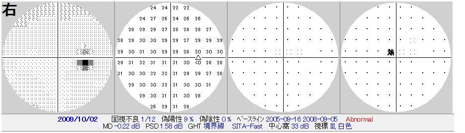 OCT画像 その2    (422)_f0088231_15551746.jpg