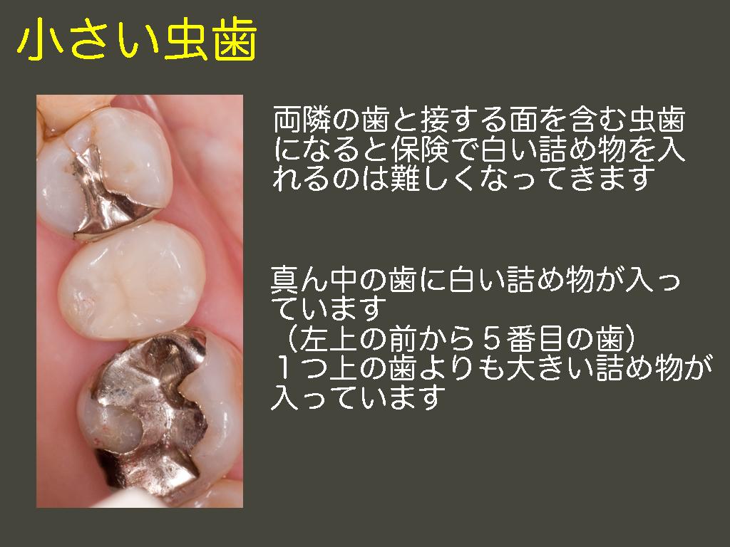 小さい虫歯_a0140882_21481644.jpg