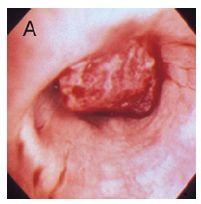 気管支動脈蔓状血管腫_e0156318_2142432.jpg
