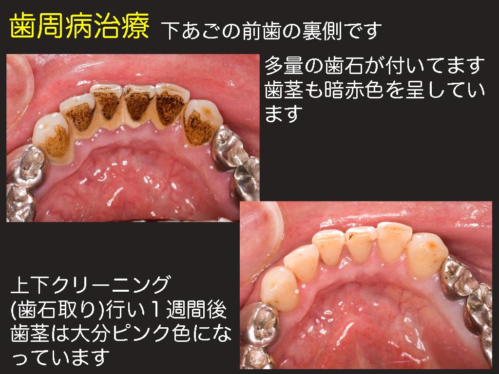 歯周病 初期治療_a0140882_21285259.jpg