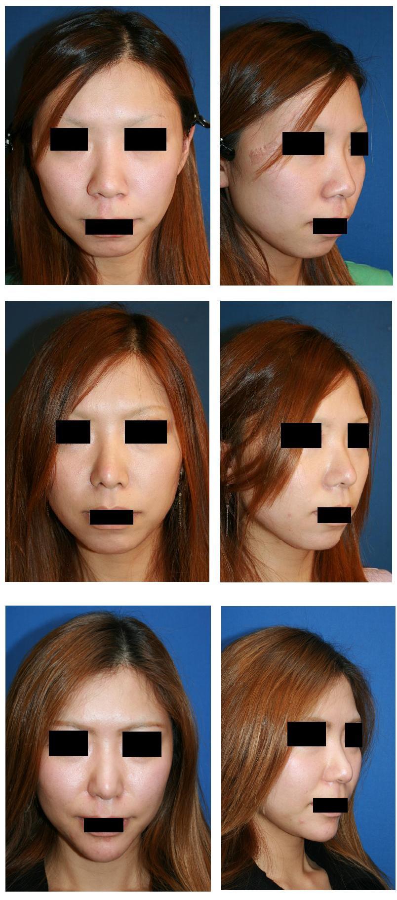 鼻尖縮小術(クローズ法)、鼻尖部軟骨移植術、小鼻縮小術、顎先プロテーゼ留置術、鼻孔縁下降術_d0092965_0233933.jpg