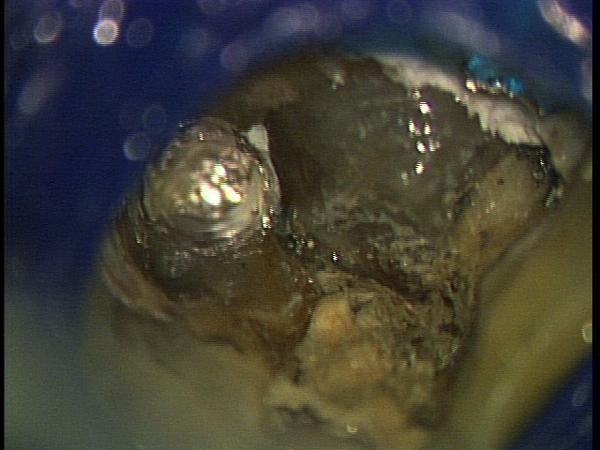 マイクロスコープ顕微鏡歯科 根管治療 MTA ラバーダム防湿_e0004468_19102468.jpg