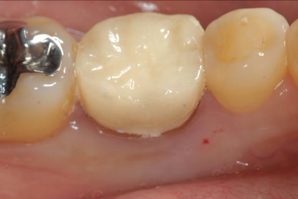 マイクロスコープ顕微鏡歯科 根管治療 MTA ラバーダム防湿_e0004468_19141171.jpg