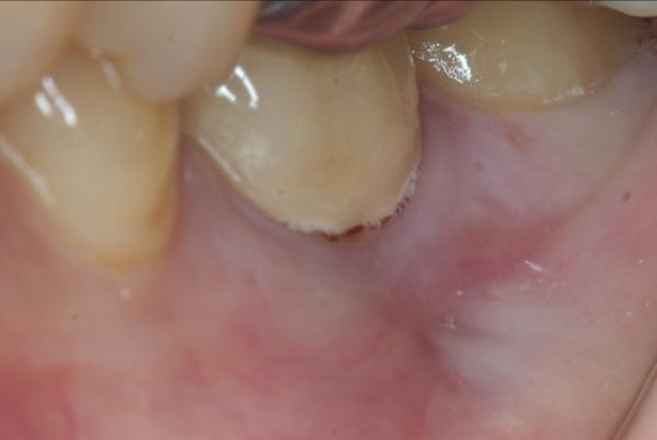 マイクロスコープ顕微鏡歯科 根管治療 MTA ラバーダム防湿_e0004468_191437.jpg