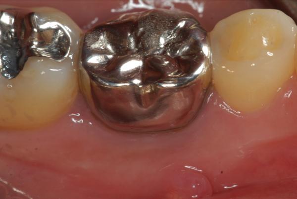 マイクロスコープ顕微鏡歯科 根管治療 MTA ラバーダム防湿_e0004468_1934487.jpg