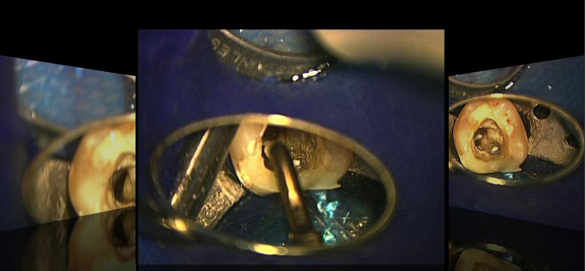 感染根管治療 東京マイクロスコープ顕微鏡歯科治療 チームイリタニコンセプト_e0004468_1810327.jpg