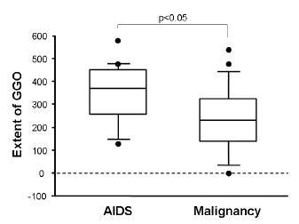 悪性疾患によるニューモシスティス肺炎は、AIDSによる場合よりコンソリデーションを混じやすい_e0156318_11471559.jpg