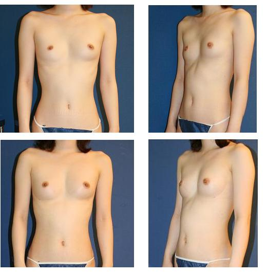 脂肪移植豊胸術_d0092965_23251492.jpg