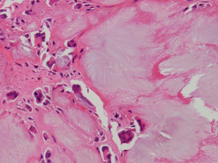 第3回 画像による病理診断クイズ 解答_d0128520_14155324.jpg