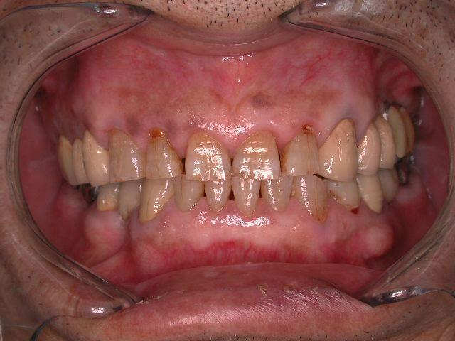 長期メンテナンス症例より.3  老化で歯は無くならいという事_b0119466_2363628.jpg