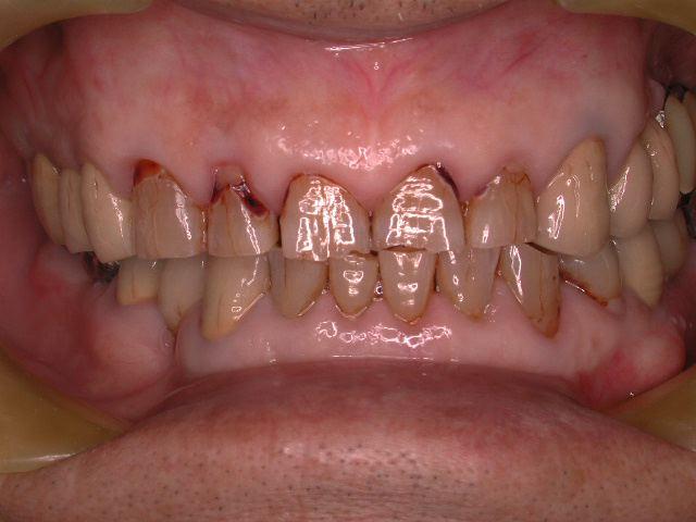 長期メンテナンス症例より.3  老化で歯は無くならいという事_b0119466_2364550.jpg