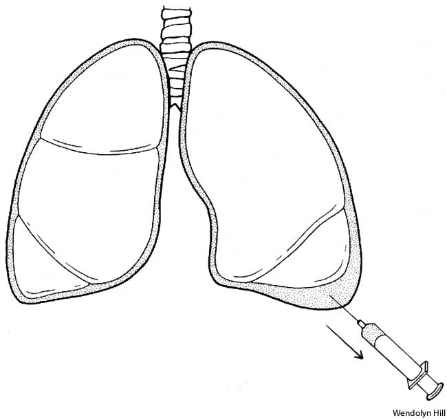 胸腔穿刺時に超音波ガイダンスを用いると、気胸の発生リスクが7割減少_e0156318_2311243.jpg