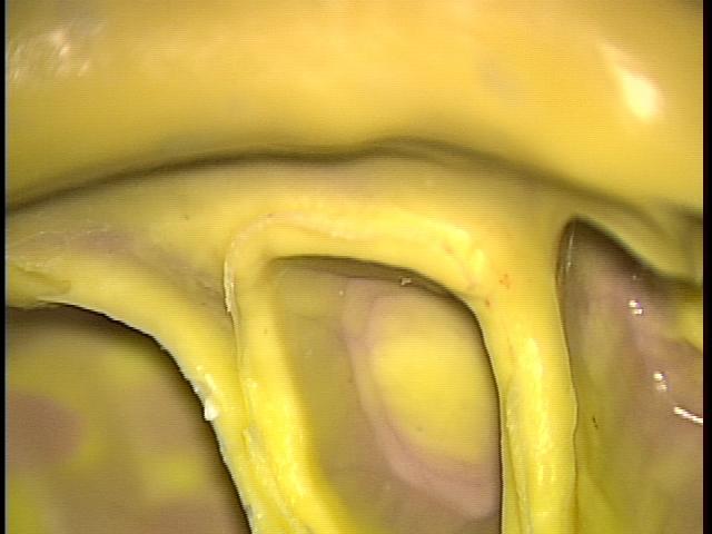 マイクロスコープ 顕微鏡歯科治療 歯肉圧排 セラミック 東京マイクロスコープ顕微鏡歯科治療_e0004468_3373327.jpg