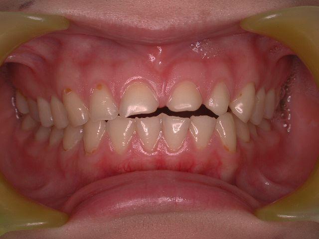 生まれつきの歯の形態異常のセラミック修復_b0119466_13353942.jpg