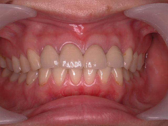 生まれつきの歯の形態異常のセラミック修復_b0119466_13361421.jpg