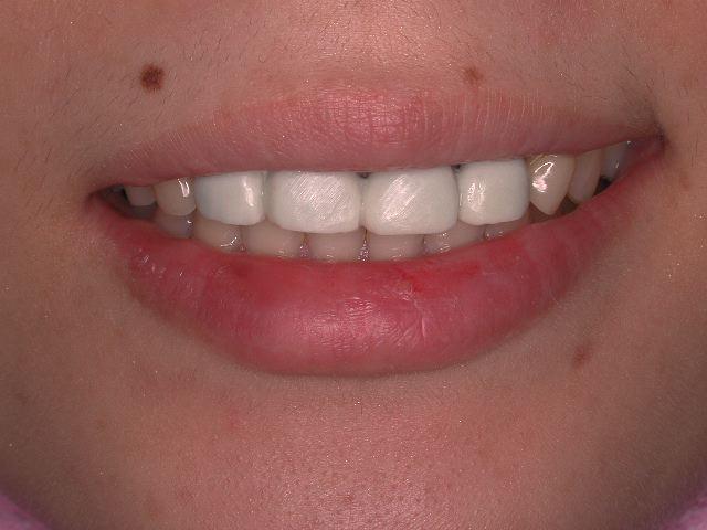 生まれつきの歯の形態異常のセラミック修復_b0119466_1336510.jpg