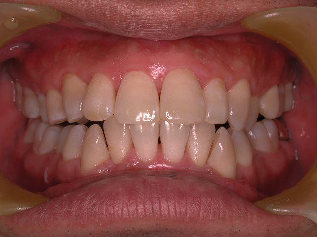 いわゆる典型的な歯周病治療_b0119466_1785420.jpg