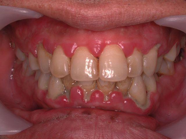 いわゆる典型的な歯周病治療_b0119466_1791210.jpg