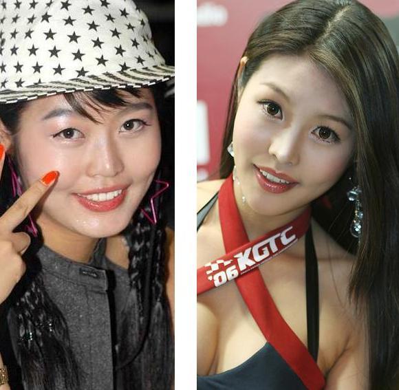 韓国の美人レースクィーン 衝撃の整形前後_f0158064_22504951.jpg