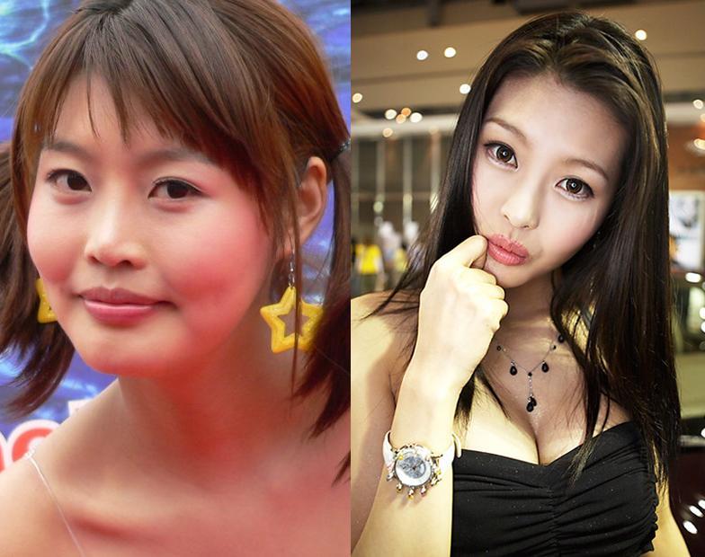 韓国の美人レースクィーン 衝撃の整形前後_f0158064_22512751.jpg