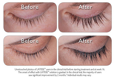 A pitfall of eyelash growing medications_d0157490_15581761.jpg