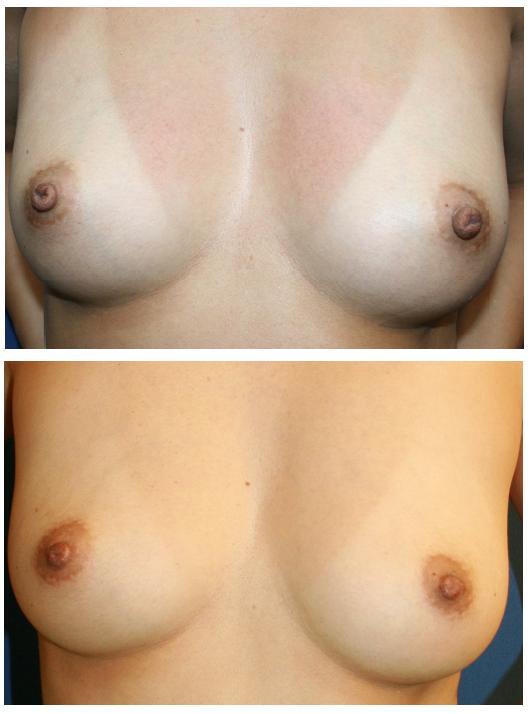 乳頭縮小術(ITO法) 術後4か月_d0092965_050231.jpg