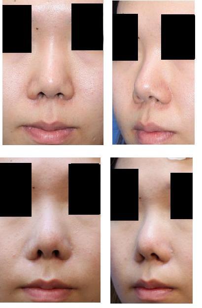 他院鼻プロテーゼ入替術、 小鼻縮小形成術  :脇山先生(若先生)_d0092965_0572949.jpg