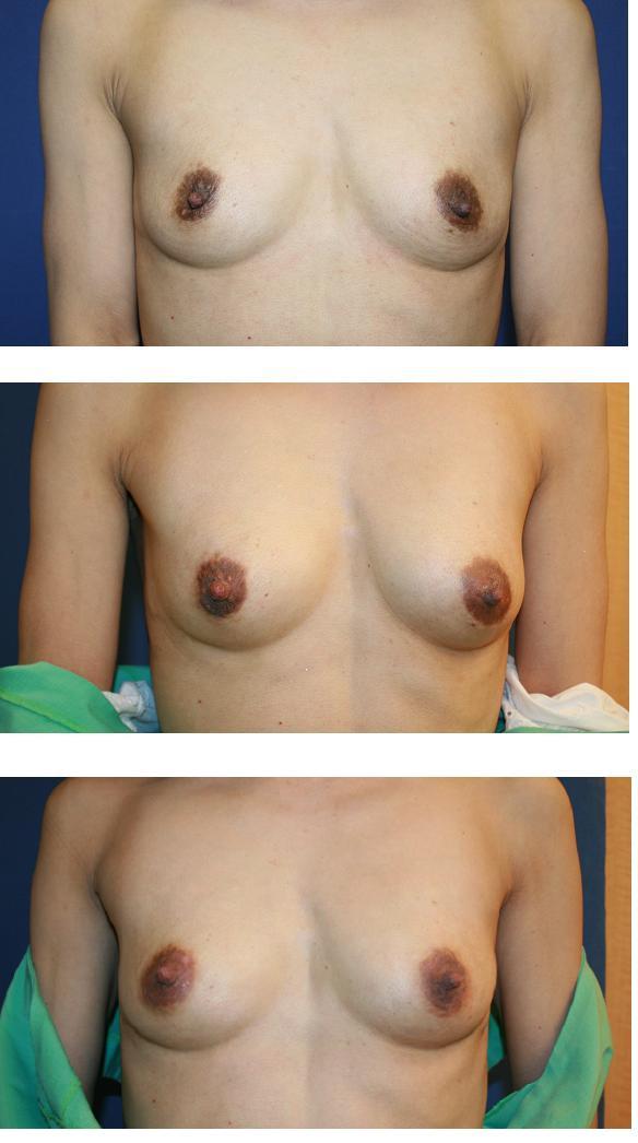 ヒアルロン酸豊胸術 術後11か月  乳輪脱色治療中_d0092965_1261061.jpg