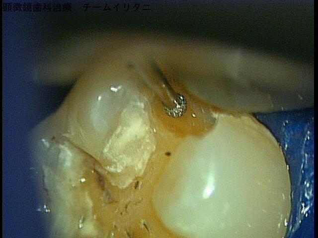 見えなきゃ、見ながら治療しなきゃしょうがない。東京マイクロスコープ顕微鏡歯科治療_e0004468_7344275.jpg