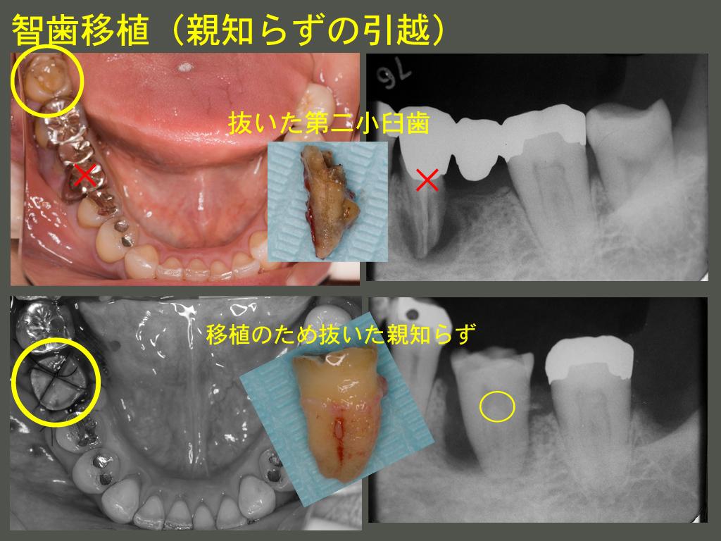 智歯移植_a0140882_21542151.jpg