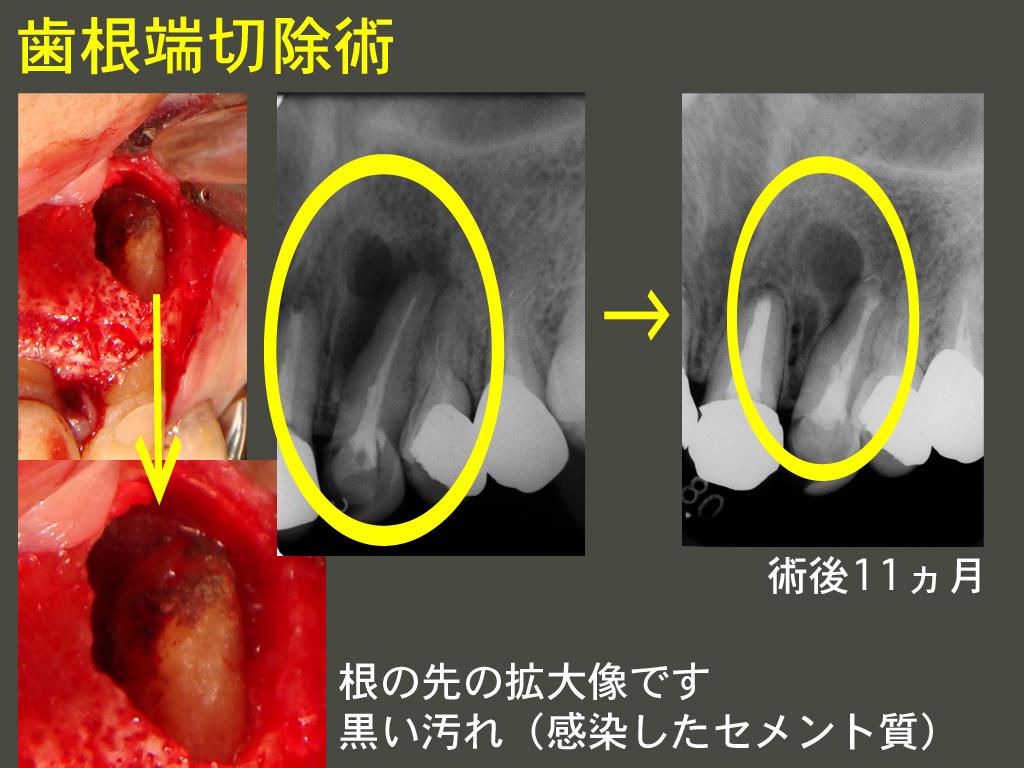 歯根端切除_a0140882_2242741.jpg