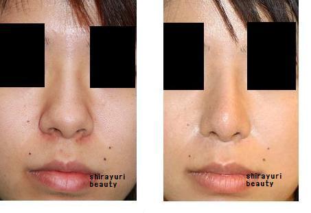 鼻尖縮小、小鼻縮小(鼻翼縮小)、鼻プロテーゼ留置術  : 脇山先生(若先生)_d0092965_23425852.jpg