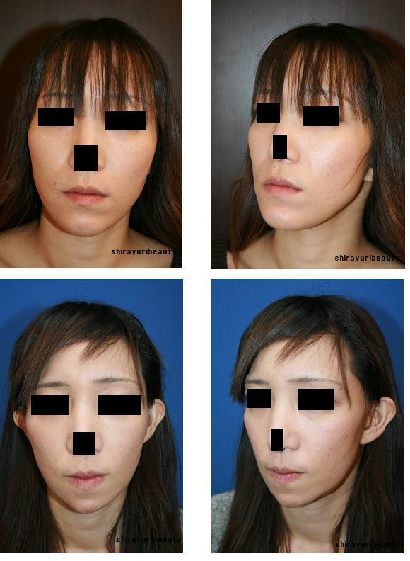 顎プロテーゼ抜去術、顎先骨切り術、顎先中抜き骨片前方移動固定術(吸収性スクリュー使用) 術後2か月_d0092965_055847.jpg
