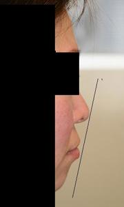 顎プロテーゼ 術後1ヶ月目_c0193771_13591670.jpg
