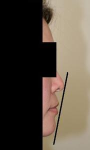 顎プロテーゼ 術後1ヶ月目_c0193771_13592599.jpg