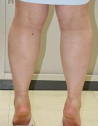 フクラハギを細くする手術(LDDN法) 術後1ヶ月目_c0193771_13594194.jpg
