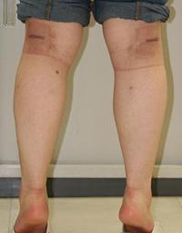 フクラハギを細くする手術(LDDN法) 術後1ヶ月目_c0193771_13595435.jpg