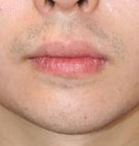 顎プロテーゼ 術後1ヶ月目_c0193771_19173638.jpg